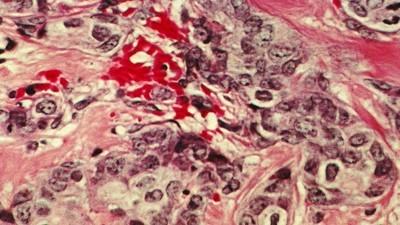 Preguntamos a un experto por qué todavía no hay una cura contra el cáncer