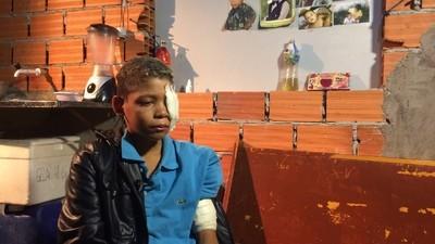Bala de borracha da PM cega criança de 12 anos durante repressão ao baile de Favela da Marcone