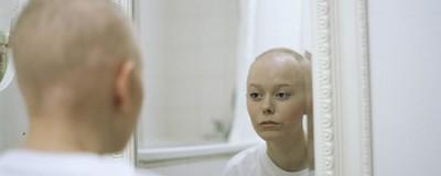 Sådan ser det ud, når din 20-årige kæreste får kræft