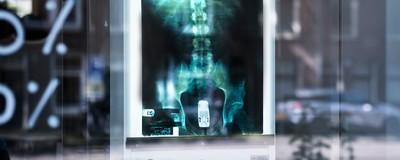 Ik sprak de man die een Mercedes ruilde voor de anusröntgenfoto uit Jackass