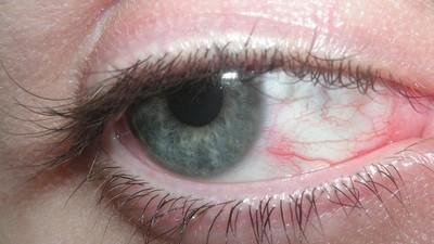 Le preguntamos a un optometrista por qué el MDMA hace que tus globos oculares tiemblen