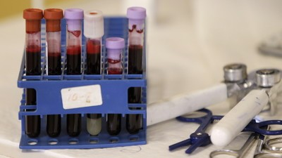 Gay Men in the US May Be Allowed to Donate Blood in Far Greater Numbers