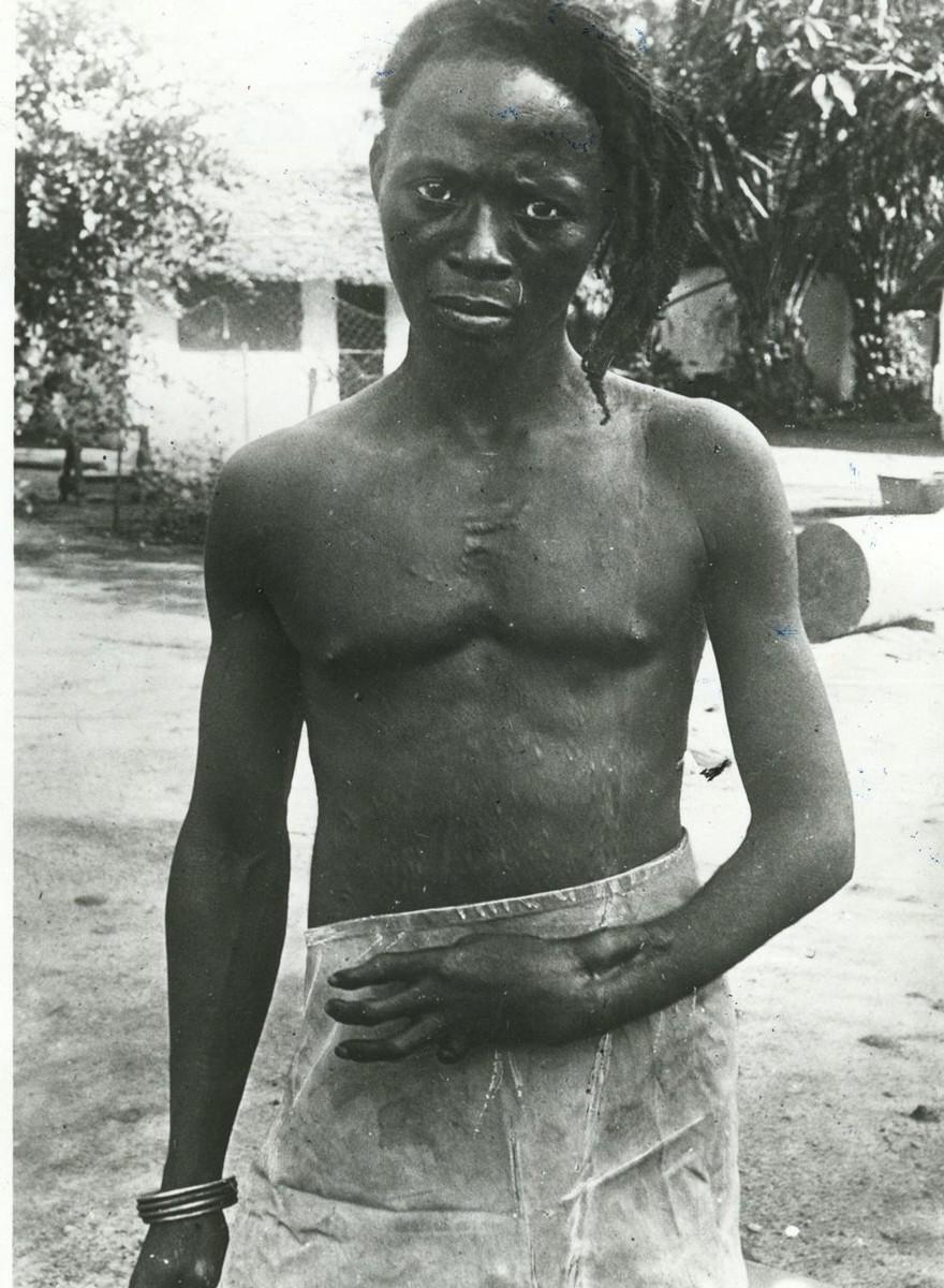 Foto's die de verschrikkingen van koloniaal Congo laten zien