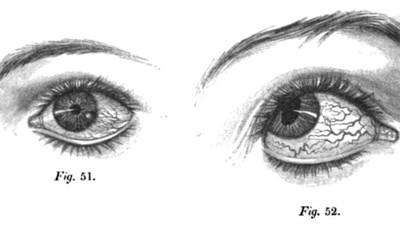 La storia del pescatore ubriaco che perse un occhio senza accorgesene