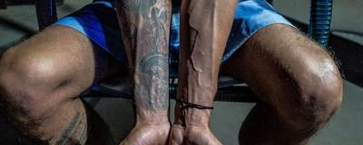 Cinco dias com ela: tratando o vício em drogas com ibogaína