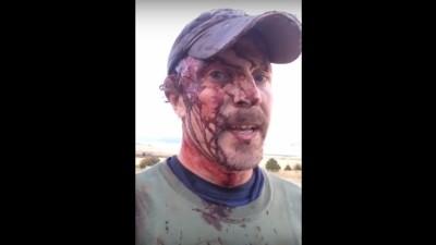 Dieser Typ hat zwei aufeinanderfolgende Bärenangriffe überlebt