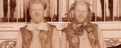 The Horrifying True Story of the Black Brothers Forced to Become Circus Freaks