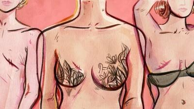 Así es luchar contra el cáncer de mama a los veintitantos