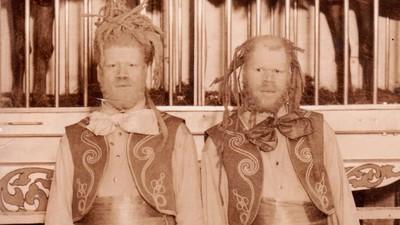 Die Gebrüder Muse: Zwei schwarze Jungen mit Albinismus, die als Zirkusfreaks ausgebeutet wurden