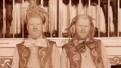 Povestea oribilă a celor doi frați negri răpiți și obligați să fie monștri la circ