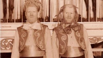 I due fratelli di colore costretti a diventare freak da circo