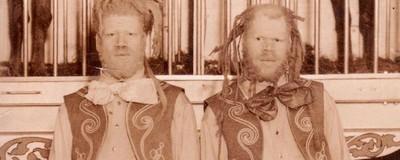 La historia de los hermanos negros convertidos en fenómenos de circo