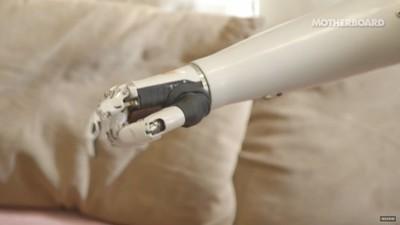 Cum e să trăiești cu o mână bionică
