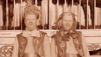 La horrible historia de los hermanos negros a los que obligaron a ser atracciones de circo