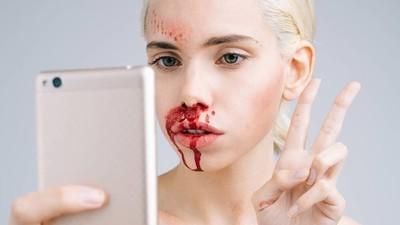 De jonge vrouwen die foto's van hun cosmetische ingrepen delen via Instagram