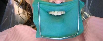 Kunnen betere beflapjes ons beschermen tegen de opmars van mond- en keelkanker?