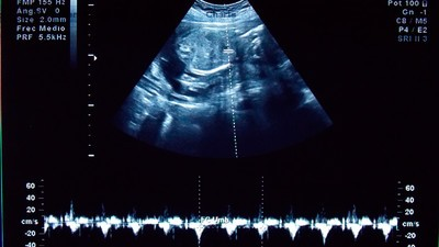 ¿Cuánto cuesta tener un bebé en la CDMX?