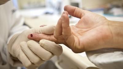 Sobe número de jovens brasileiros com HIV