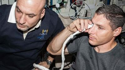 Nueva teoría sobre la misteriosa causa de la pérdida de visión de los astronautas