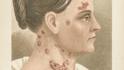 Tattoos, Diseases, and Skin Pickings: A Museum Explores the Importance of Skin