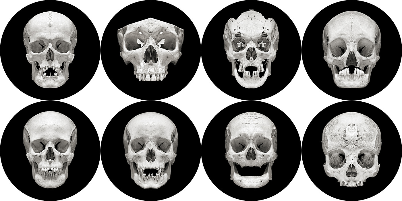 Post Mortem: Every Human Skull is a Beautiful Snowflake