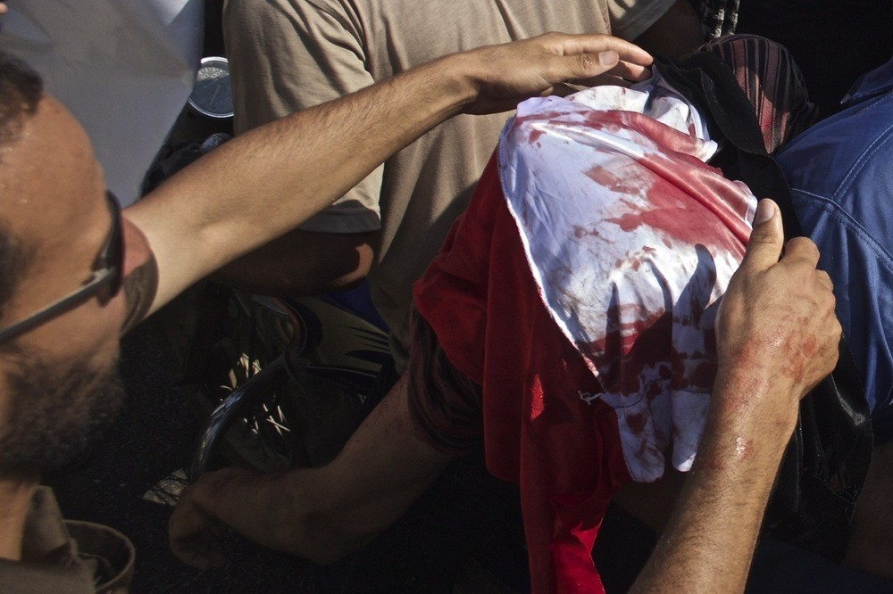 An injured man is carried away from a demonstration by supporters of former President Morsi.