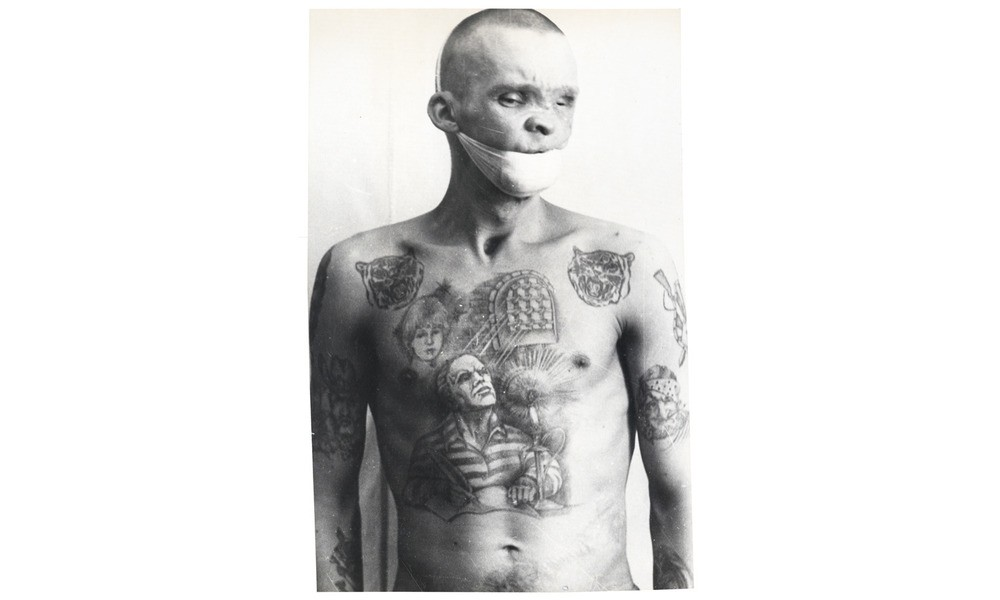 This prisoner is one of many who contracted syphilis, AIDS, or tetanus while being tattooed in unsanitary conditions.